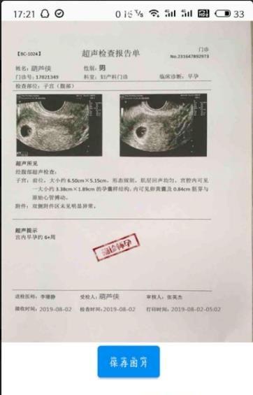 制作假怀孕b超单生成器免费软件app图片1